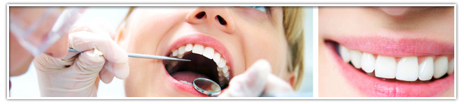 Dental Teeth Cleaning